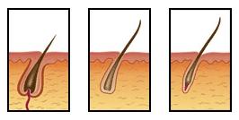 Haargroeifase, Laserontharingen Vandeputte Maarkedal